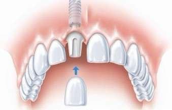 补牙是什么原理_补牙封药是什么药图片