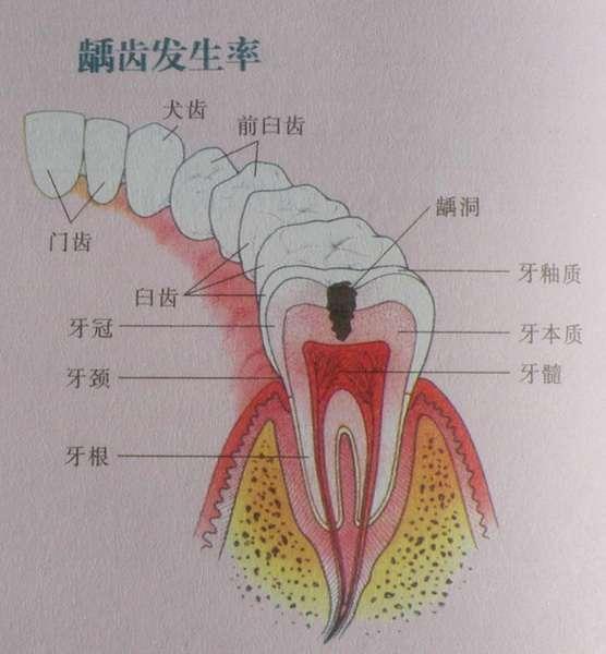 据常州太平洋口腔诊所统计,我国有近30%儿童的牙齿参差不齐。牙齿不齐的原因及其机理错综复杂,常见的原因有咀嚼功能不足、乳牙的龋坏和早失、不良的口腔习惯等。如果孩子发生了牙齿不齐,就需要矫正。   孩子的牙齿结构比较软,相对成人来说更容易得龋病。另外,有些孩子饮食习惯不好,比如睡前喜欢含块糖或者刷牙不正确等,这些都是导致龋病的原因。因为补牙需要观察和复诊,一般约需两个星期的时间,所以常州太平洋口腔专家建议,如果孩子牙齿有问题,家长最好放假后就带孩子来就医。 经常有家长问什么时候矫正最好?矫治的最佳时间不是绝