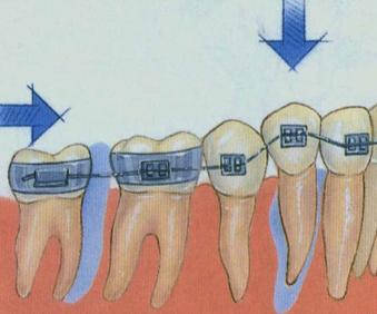 成人网人逼_成人矫正牙齿大概多少钱呢?有没有人知道的?_突袭网