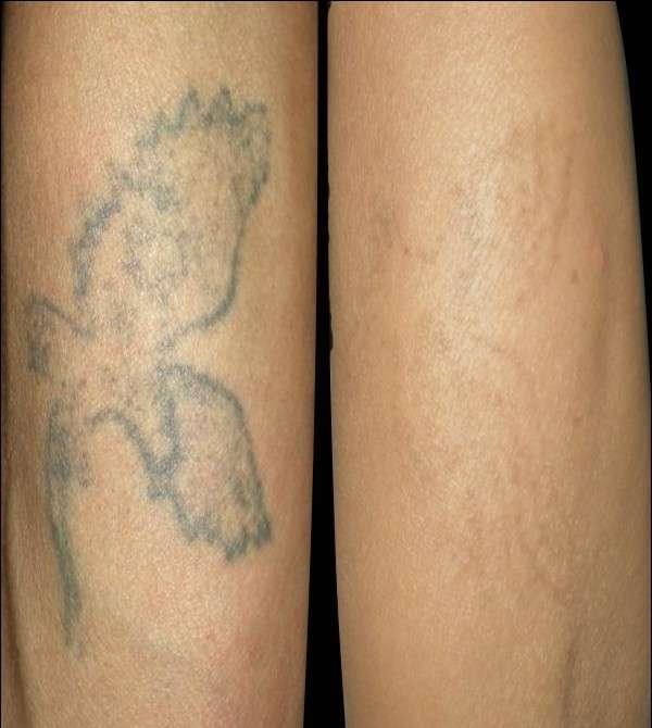 洗纹身什么原理_洗纹身后什么样子图片