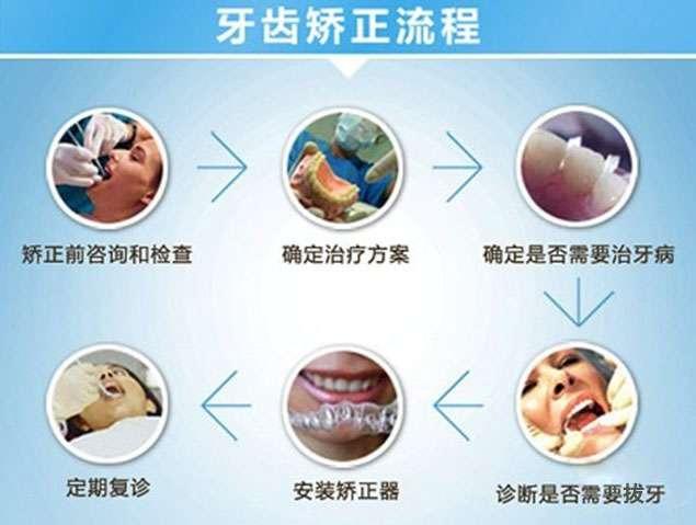 在南京口腔医院矫正牙齿要多少钱,,只矫上排的话