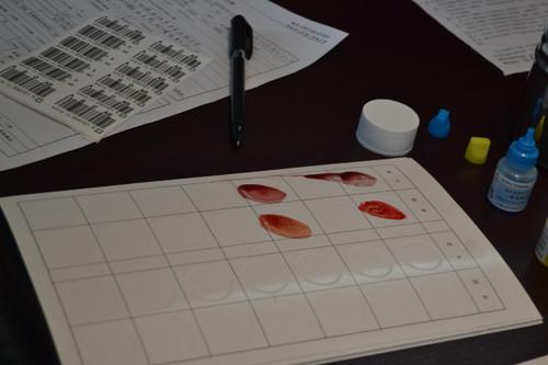 首先是血液的采集和化验,抽出的血液混合药水化验出血型后,把试纸