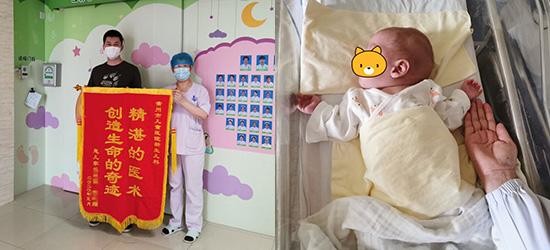 常州儿童医院成功救治25周巴掌大超早产儿,出生时仅950克