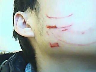 儿子脸被打到破相